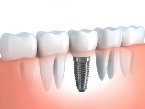 dental implants Castle Rock