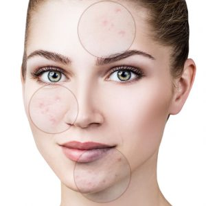 acne clinics near me
